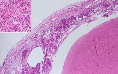 post mortem tissue specimen from a slice, showing acute meningitis